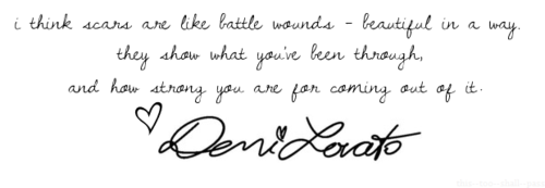 Demi Lovato  Quote (About wounds success strong scars rehab life inspirational failed beautiful)